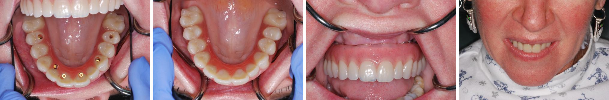 Hybrid Denture - Teeth in a Day whole